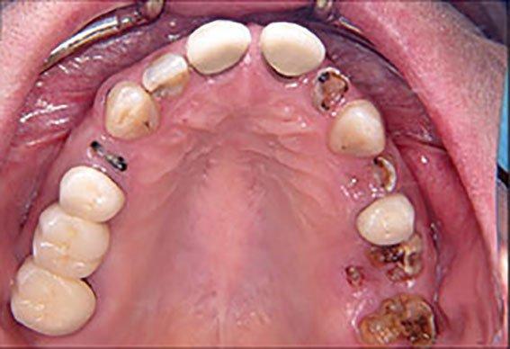Innovative Digital Workflow Using a Verification Jig With Teeth