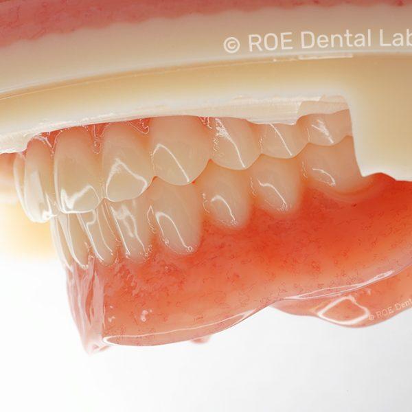 Ivotion Denture System