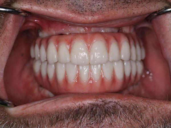 Dental Photogrammetry